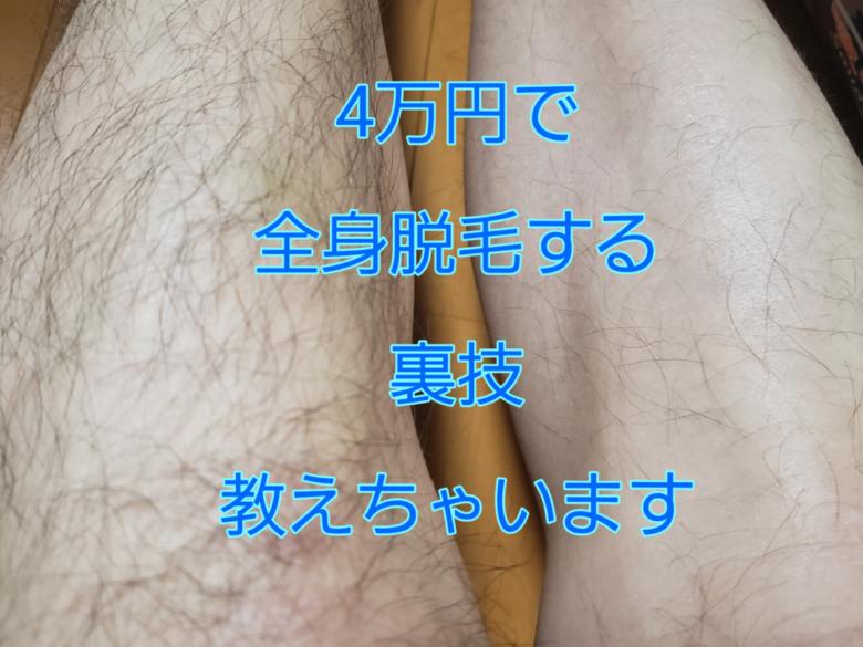 4万円脱毛
