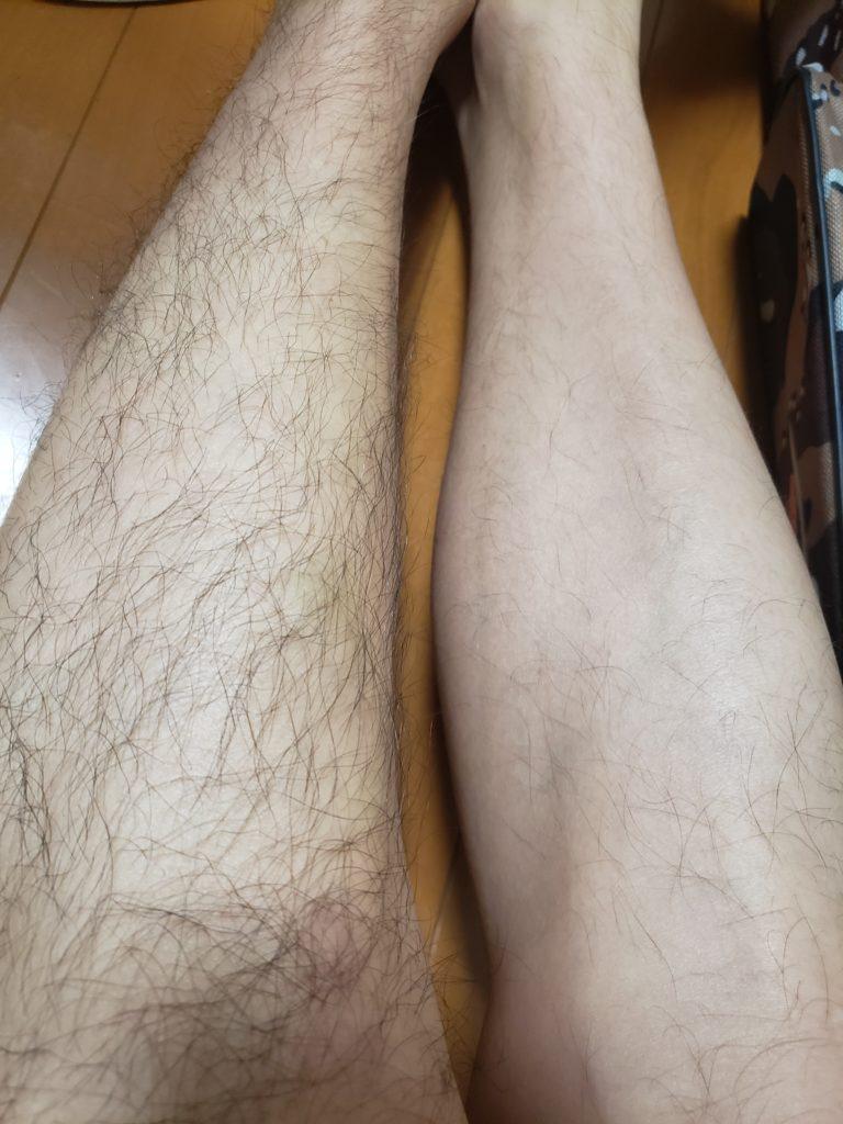 ケノン使用後 剃る